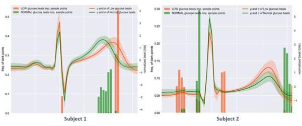 研究称人工智能通过心电图就能检测低血糖水平 无需扎指头取血