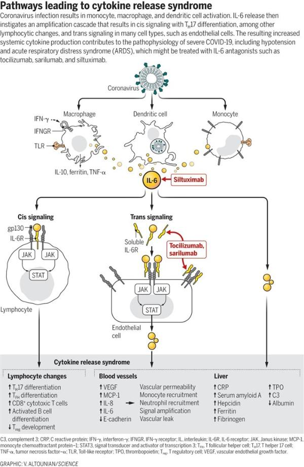 """《科学》:新冠重症患者中广泛存在细胞因子释放综合征,药物抑制IL-6浓度是""""诀窍"""""""