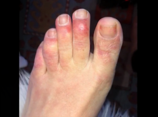 脚趾出现紫色病变暗示感染新冠病毒?可能没这么简单……