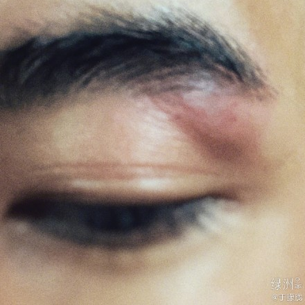 于朦胧左眼受伤 武戏和左眼有仇?!