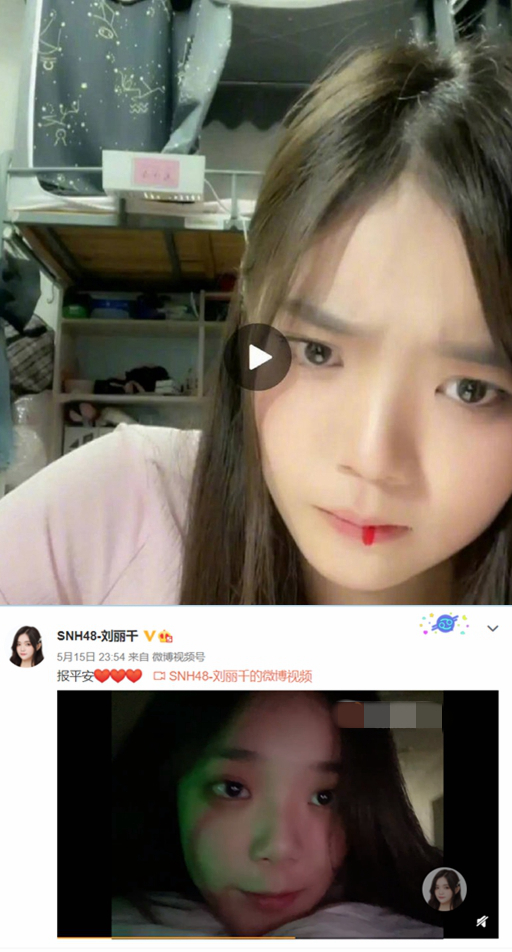 SNH48刘丽千住院准备手术 此前曾在直播中吐血
