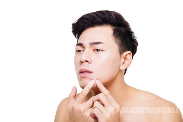 男生护肤祛痘 褪去满脸痘的光环谁还敢说你不帅?