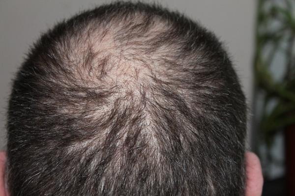 日本脱发新研究登上《自然》子刊:老化导致毛囊干细胞分裂异常