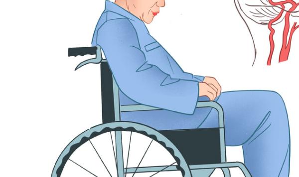 让中风患者重新动起来,科学家开发脑组织修复技术