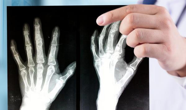 科学家在骨骼中发现新细胞,其可控制骨骼发育和骨密度