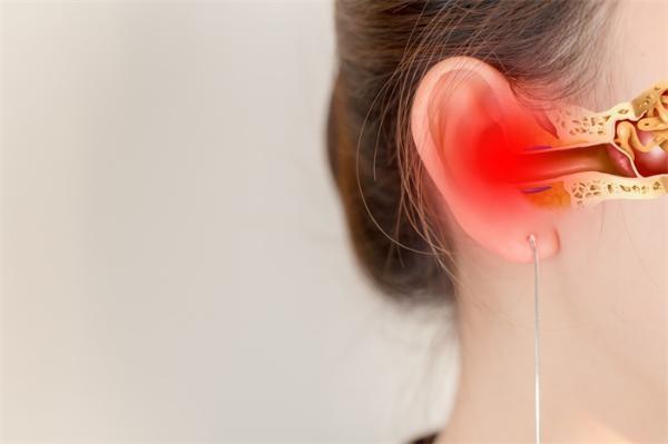 精准!更灵敏的光遗传学人工耳蜗诞生,激活了狨猴特定区域的听觉神经元