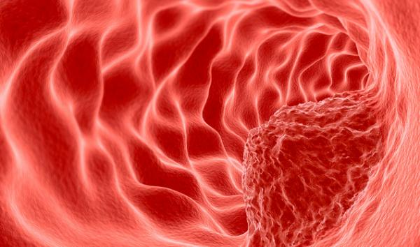 保护男性健康,消灭前列腺癌,南方科技大学联合海外名校给出潜在方案
