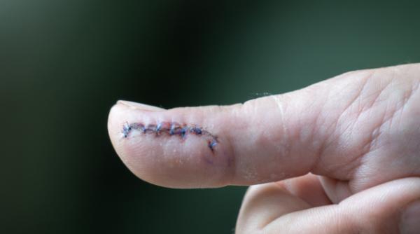 身上有疤太难看?科学家瞄准疤痕基因,祛疤效果还不错,人体应用即将到来