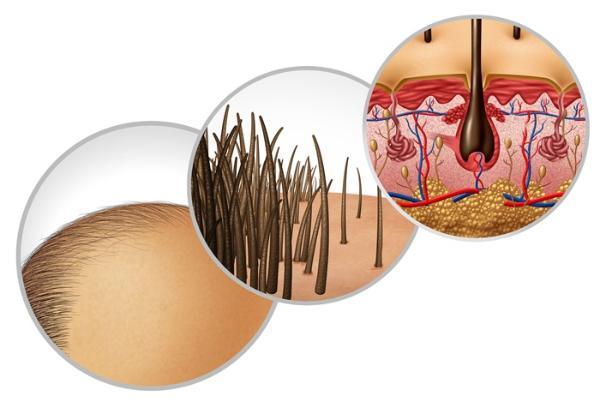 """研究:""""秃顶基因""""让男性感染新冠重症的几率升高了2.5倍"""
