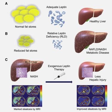 无需运动,甚至无需节食就能治疗脂肪肝!研究发现瘦素疗法有奇效