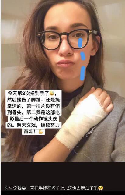 卢靖姗出国拍戏自曝多次受伤 坚持拍摄敬业满分