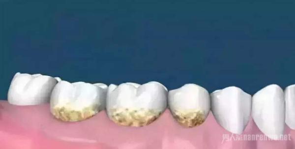 处理牙结石的五个土办法 省钱还省力