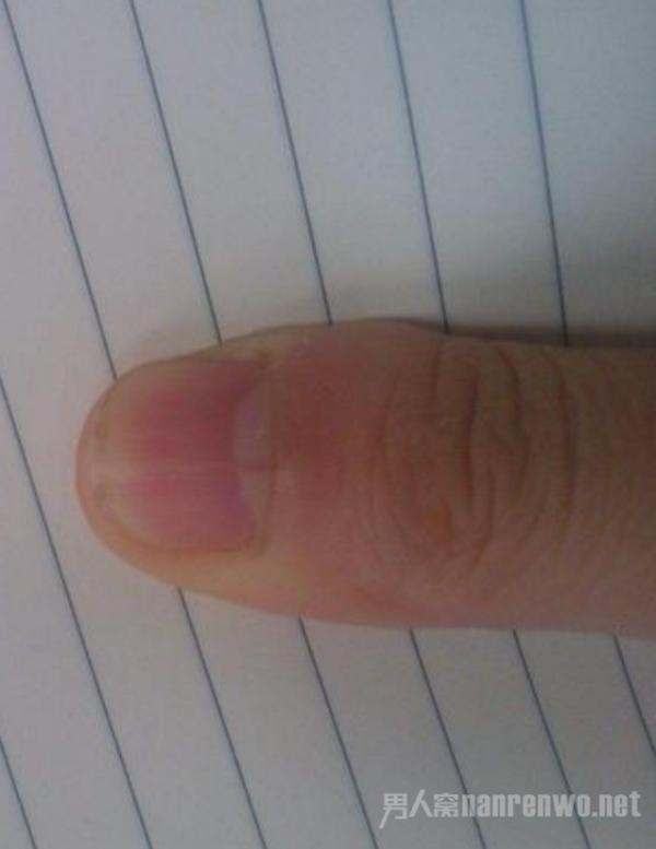 指甲上有竖纹是怎么回事 看看专家是怎么说的