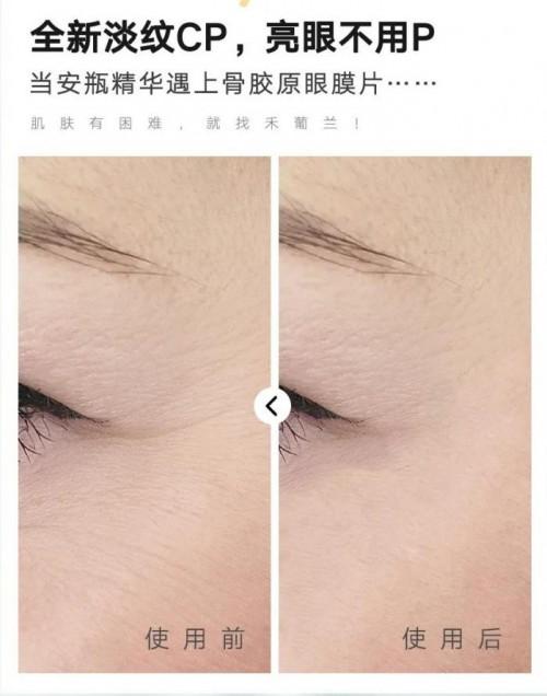 眼见淡纹新时代,禾葡兰斩获天猫眼膜品类单品第一
