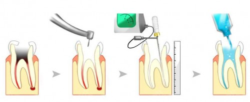 西班牙Lacer牙膏|成人龋齿常见的问题有哪些?