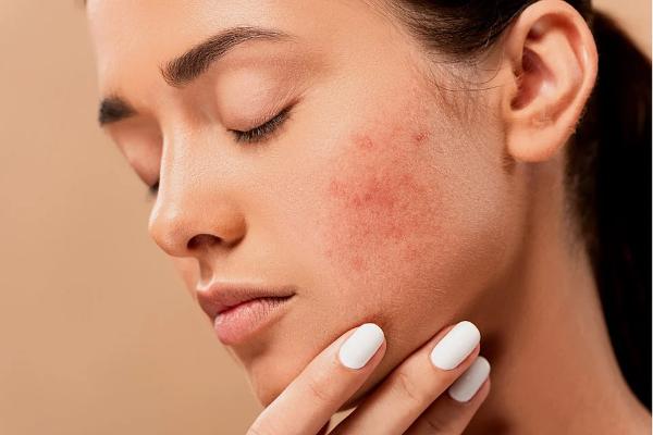 """半数中国人认为自己是""""敏感肌"""" 护肤品牌如何突破成分?"""