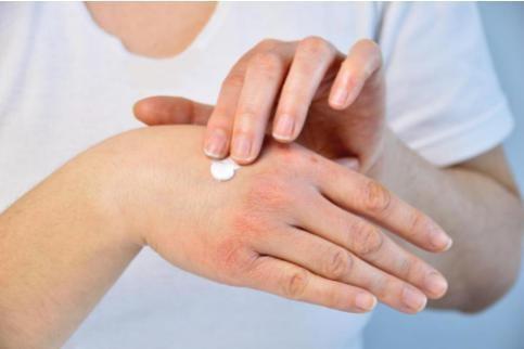 不同季节敏感/干性皮肤?只需使用澳大利亚干性敏感肌肉护理品牌:杨康德马文