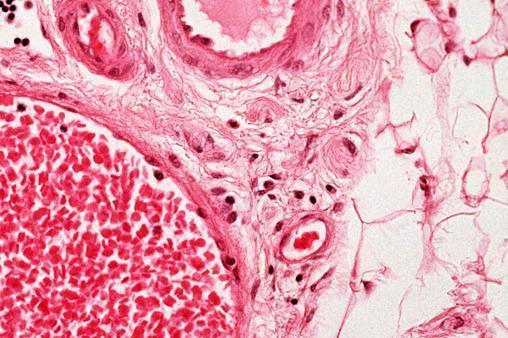 不用接触皮肤,新红外成像仪可以清晰显示你的血管
