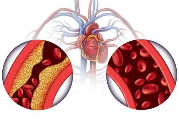 警惕!心血管脂肪质量会影响记忆功能,绝经妇女比未绝经者更危险